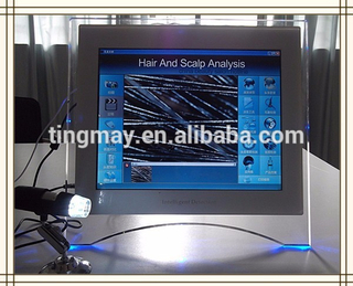 Most favorable price hair analyser Hair Analysis Machine