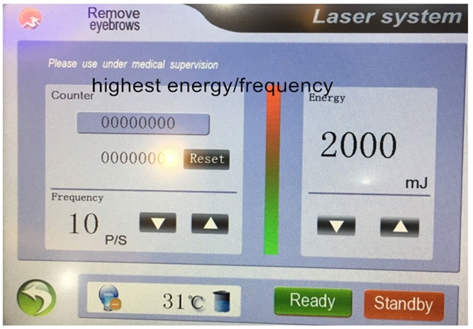 New product big screen 2000mj 532nm 1064nm 1320nm nd yag laser tattoo removal laser machine